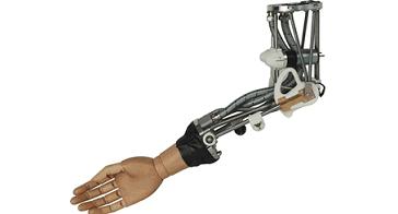 Colocan por primera vez en Europa una mano biónica en un paciente pediátrico