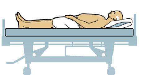 Infografia : Ulcera por presion